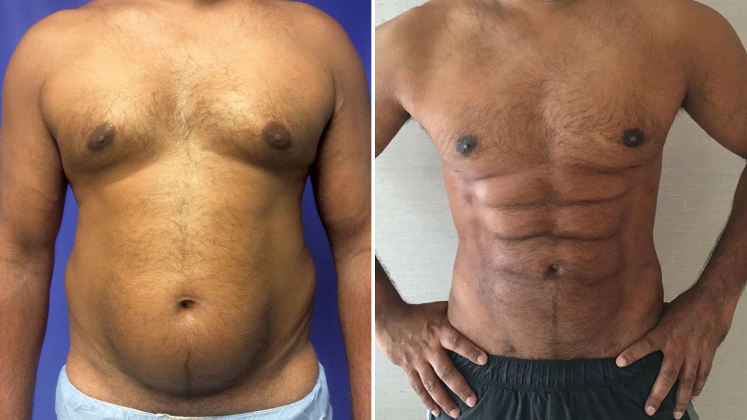 Photo of A New Plastic Surgery Procedure Can Sculpt Your Belly Fat into a Six Pack